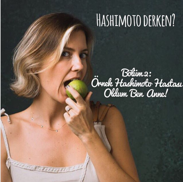 Hashimoto Derken? – Bölüm 2: Örnek Hashimoto Hastası Oldum Ben Anne!